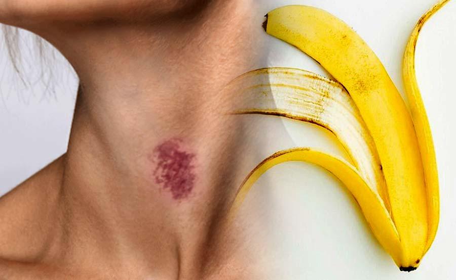 ABANTE chikinini hickey banana peel