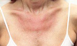 Bebot nagka-allergy nang makalunok ng semilya