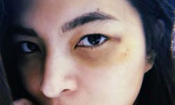 Angel Locsin nagka-black eye