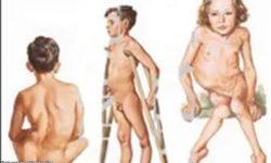 Alamin: Dapat malaman tungkol sa polio